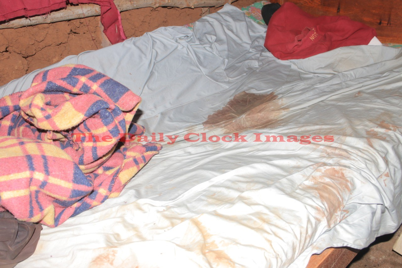 The bed sheet where he sleeps with blood stains